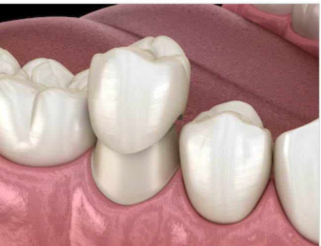Restorative Section
